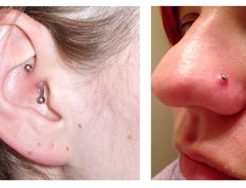 Lumps & Bumps on Piercings
