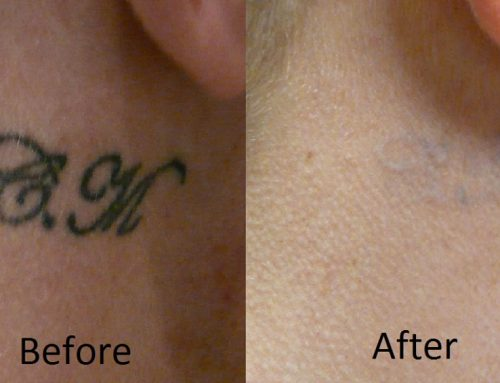 Tattoo Laser Removal Information