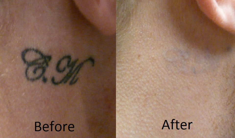 Tattoo Laser Removal Information - Pictures of Lily